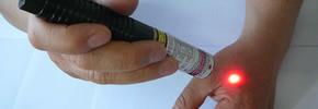 Laserpuncture pada titik Hegu