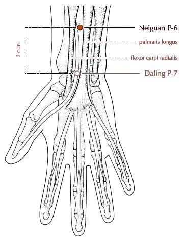 letak Anatomis titik Neiguan (PC-6)