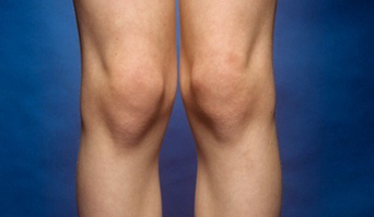 Akupunktur untuk Nyeri Lutut